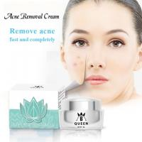 China Acne Day and Night Cream for Dark Spot Removal and Face Whitening on sale