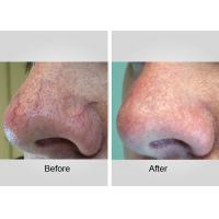 China Laser Spider Vein Removal Machine , Inflammatory Acne Laser Treatment Device on sale