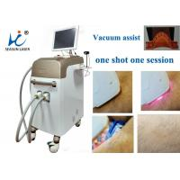 China Fast Vacuum Laser Hair Removal Machine Comfortable Permanent Hair Reduction on sale